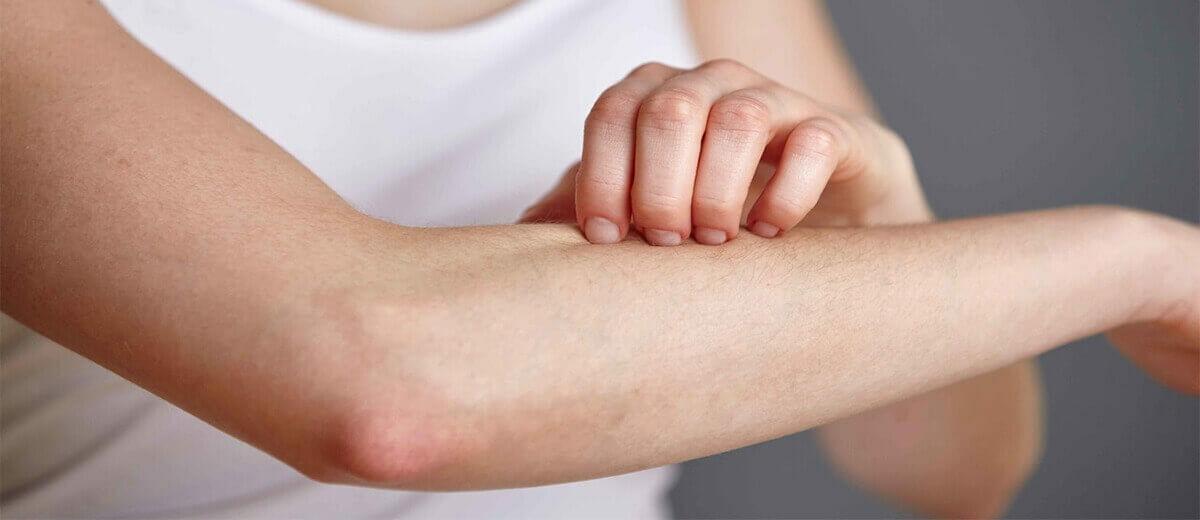 Bőrproblémákra természetes kenőcsök